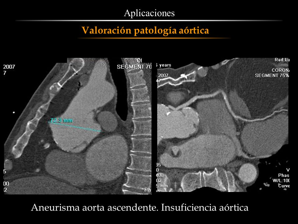 Aneurisma aorta ascendente. Insuficiencia aórtica