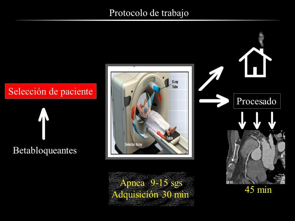Protocolo de trabajo Selección de paciente. Procesado. Betabloqueantes. Apnea 9-15 sgs. Adquisición 30 min.