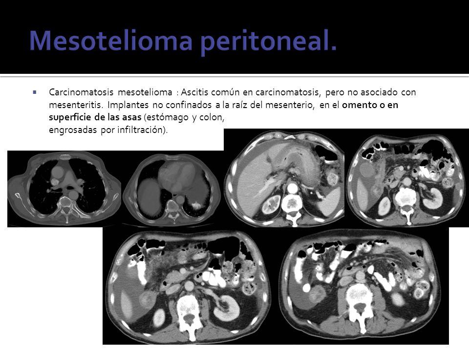 Mesotelioma peritoneal.