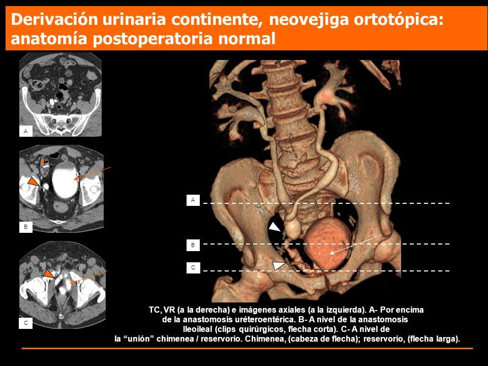Derivación urinaria continente, neovejiga ortotópica: