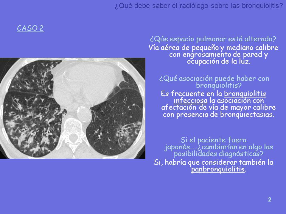 ¿Qué debe saber el radiólogo sobre las bronquiolitis