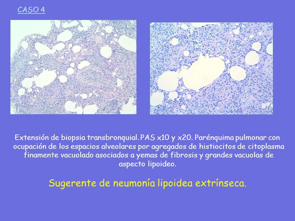 Sugerente de neumonía lipoidea extrínseca.