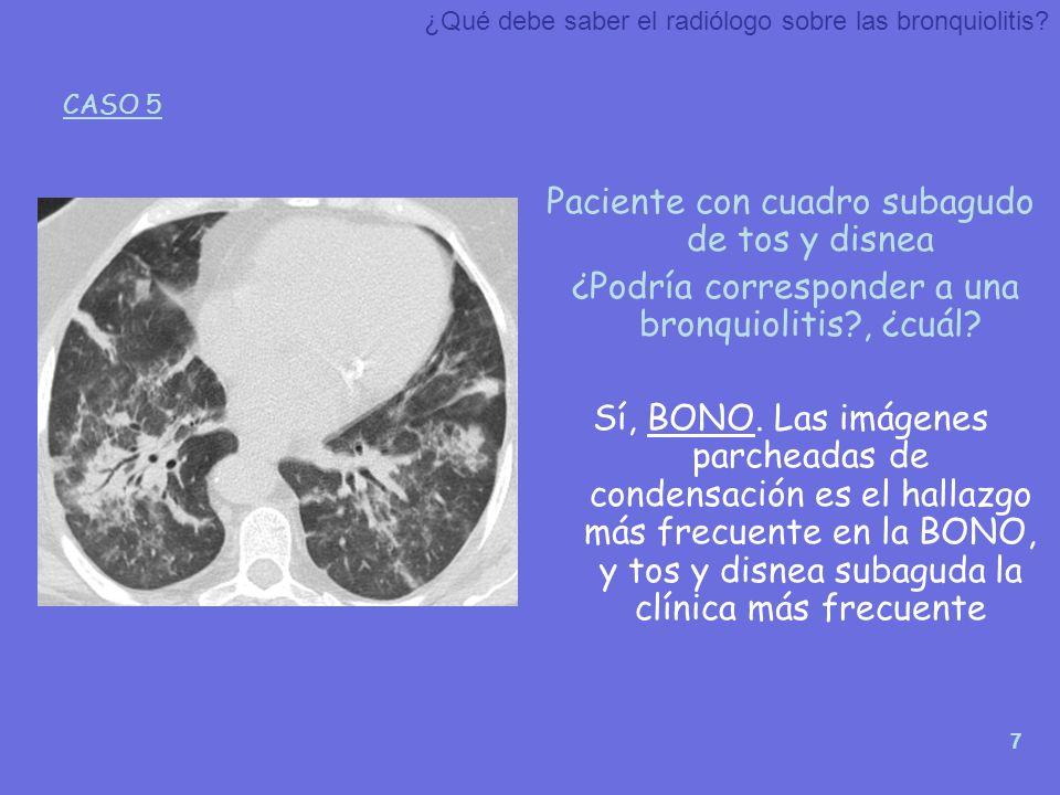 Paciente con cuadro subagudo de tos y disnea
