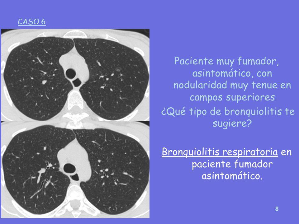 ¿Qué tipo de bronquiolitis te sugiere
