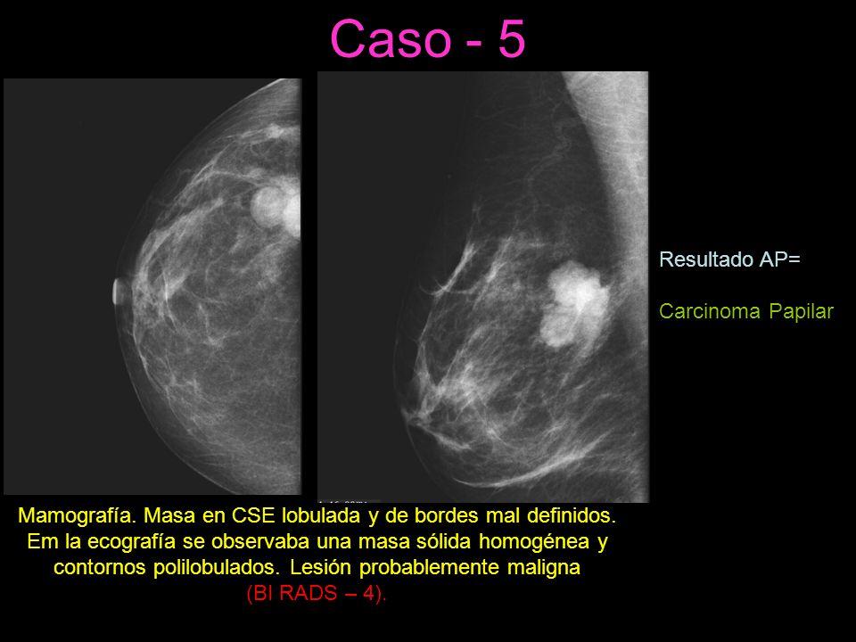 Caso - 5 Resultado AP= Carcinoma Papilar
