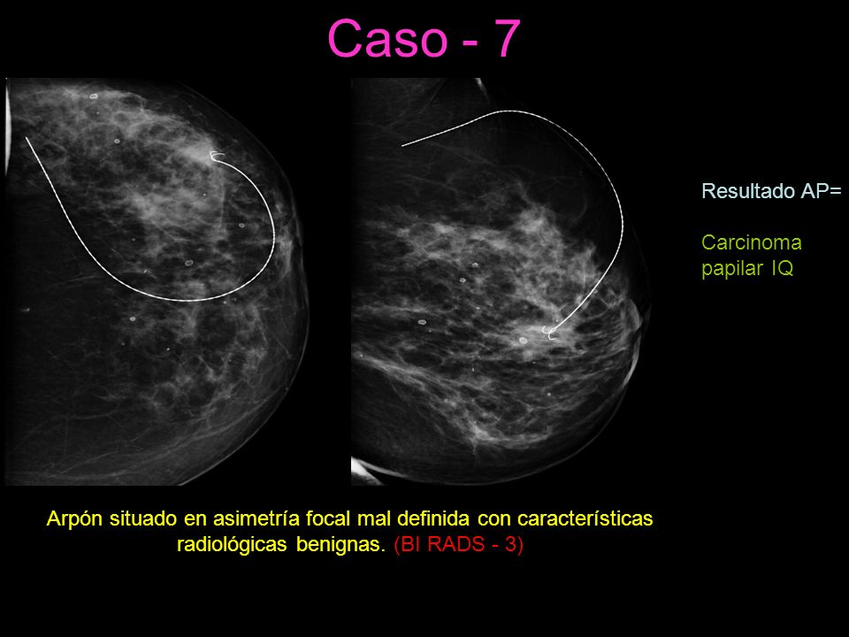 Caso - 7 Resultado AP= Carcinoma papilar IQ