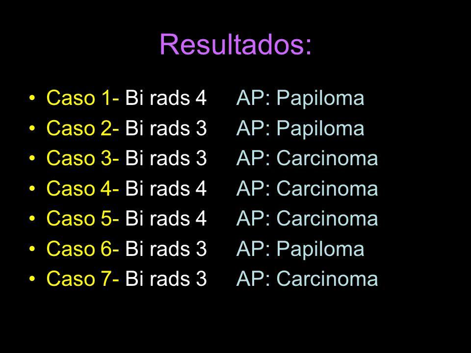Resultados: Caso 1- Bi rads 4 AP: Papiloma
