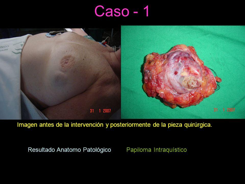 Caso - 1 Imagen antes de la intervención y posteriormente de la pieza quirúrgica. Resultado Anatomo Patológico=