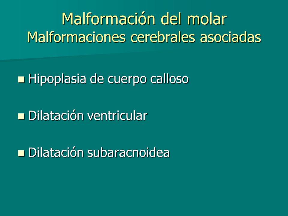 Malformación del molar Malformaciones cerebrales asociadas