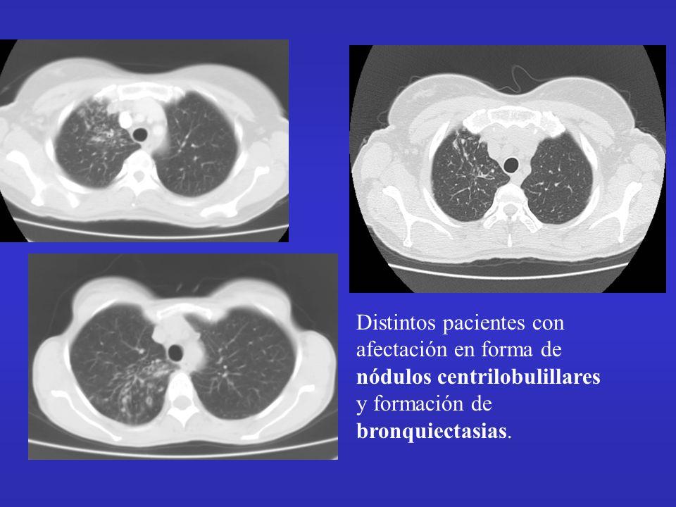 Distintos pacientes con afectación en forma de nódulos centrilobulillares y formación de bronquiectasias.