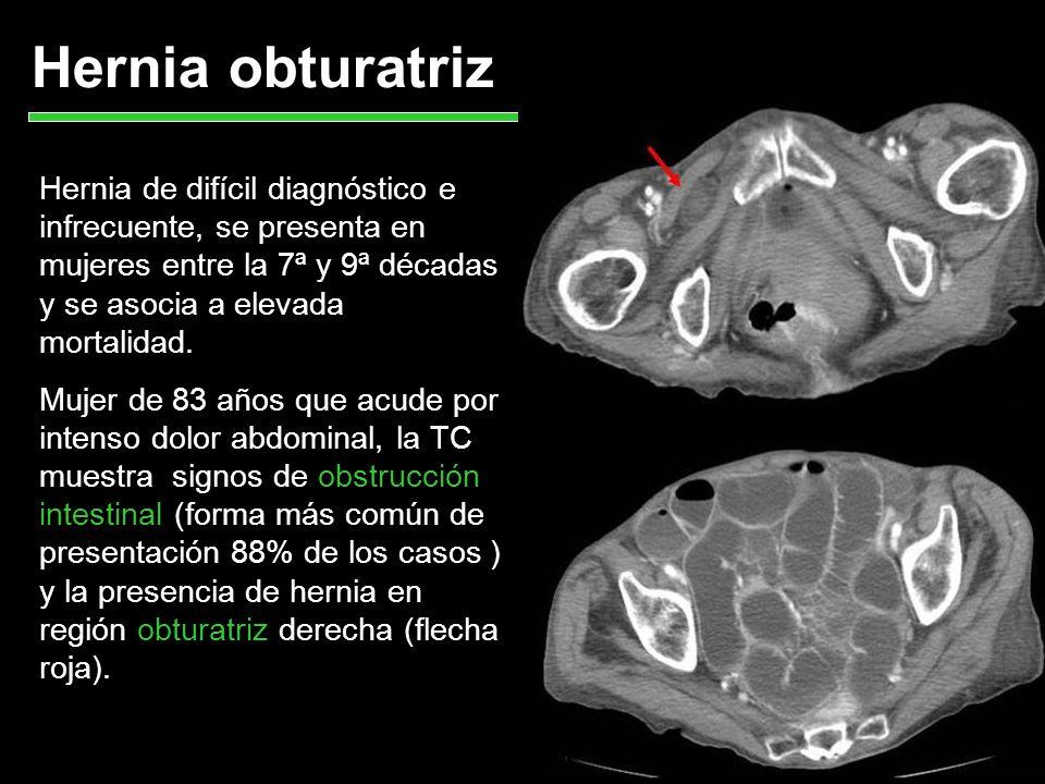Hernia obturatriz Hernia de difícil diagnóstico e infrecuente, se presenta en mujeres entre la 7ª y 9ª décadas y se asocia a elevada mortalidad.