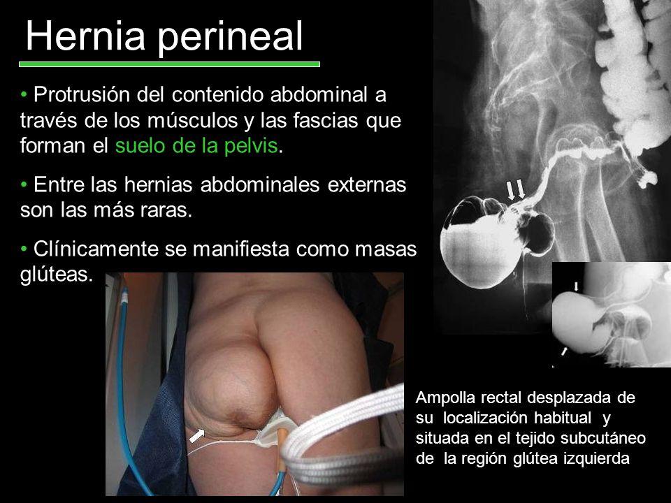 Hernia perinealProtrusión del contenido abdominal a través de los músculos y las fascias que forman el suelo de la pelvis.