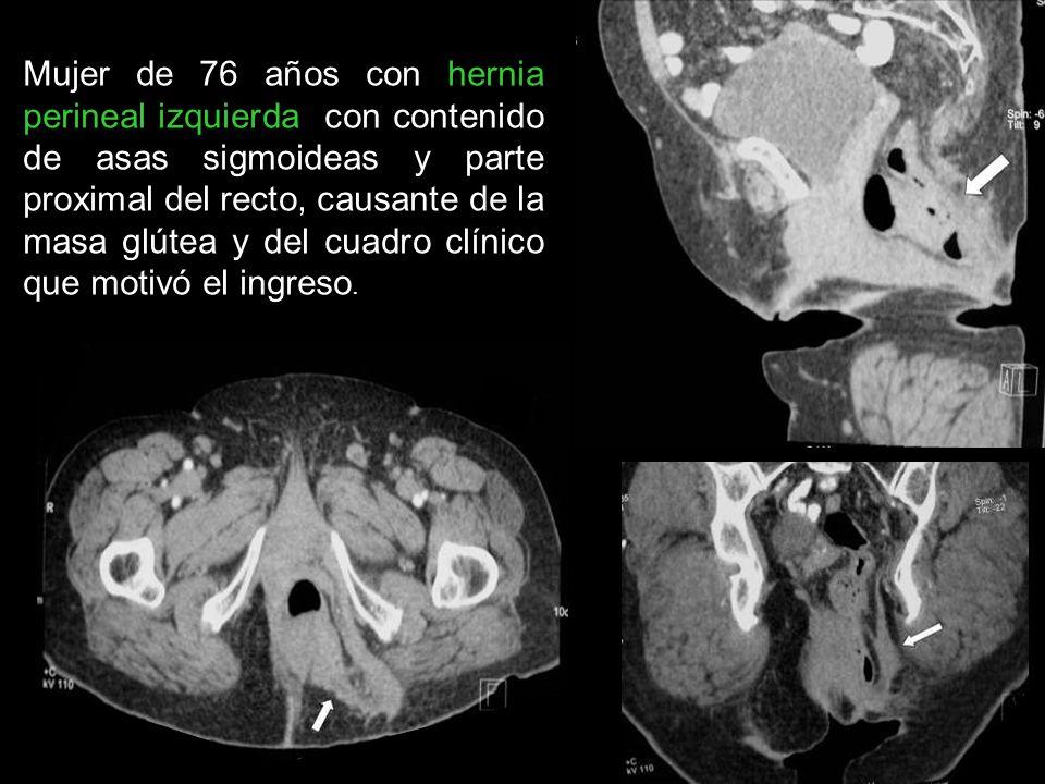 Mujer de 76 años con hernia perineal izquierda con contenido de asas sigmoideas y parte proximal del recto, causante de la masa glútea y del cuadro clínico que motivó el ingreso.