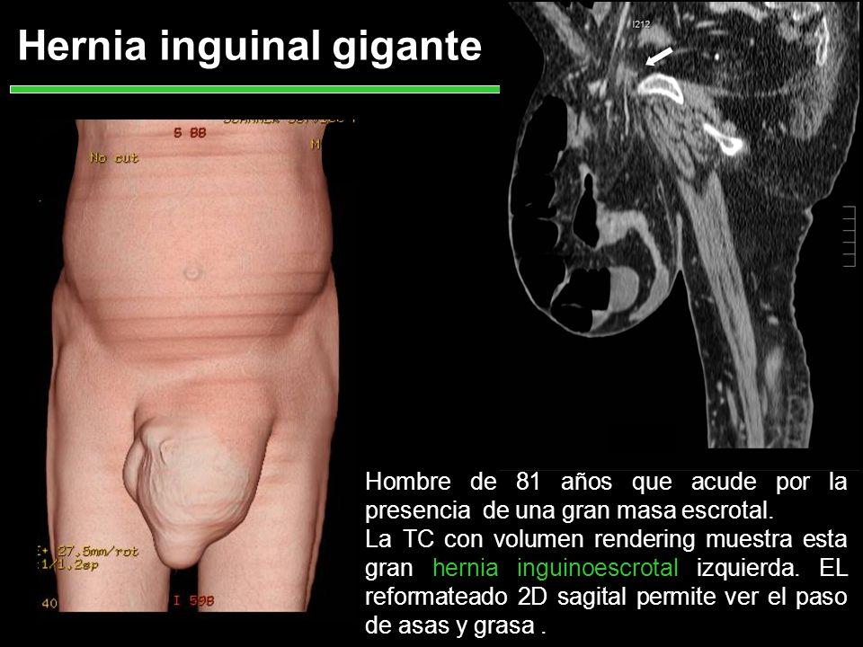 Hernia inguinal gigante