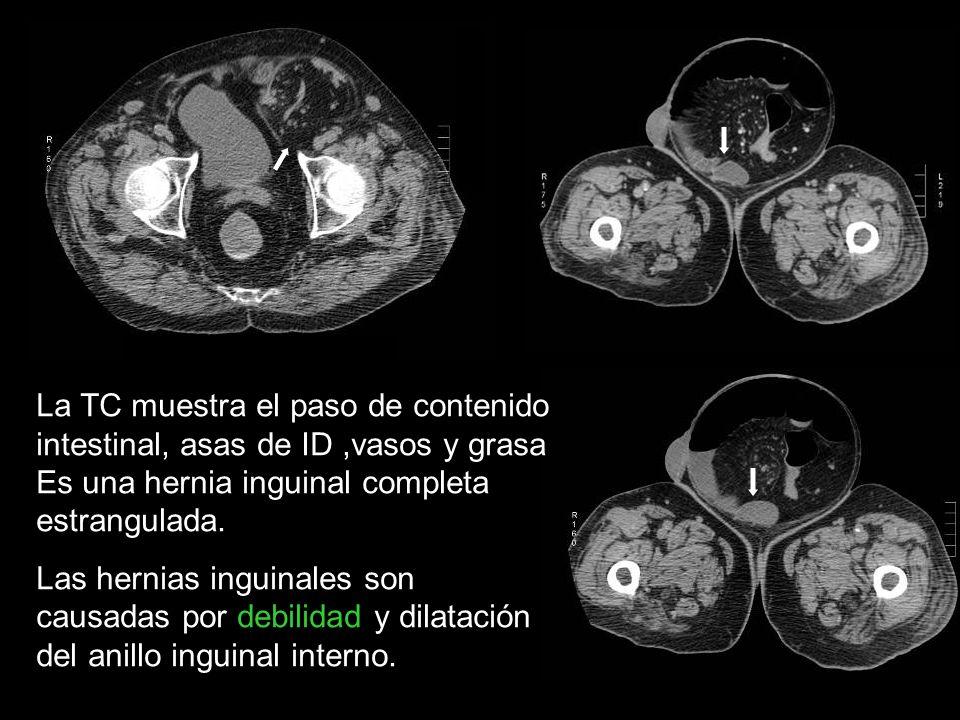 La TC muestra el paso de contenido intestinal, asas de ID ,vasos y grasa Es una hernia inguinal completa estrangulada.
