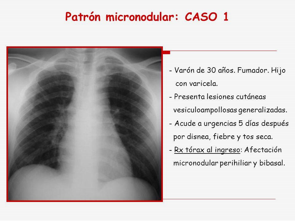 Patrón micronodular: CASO 1