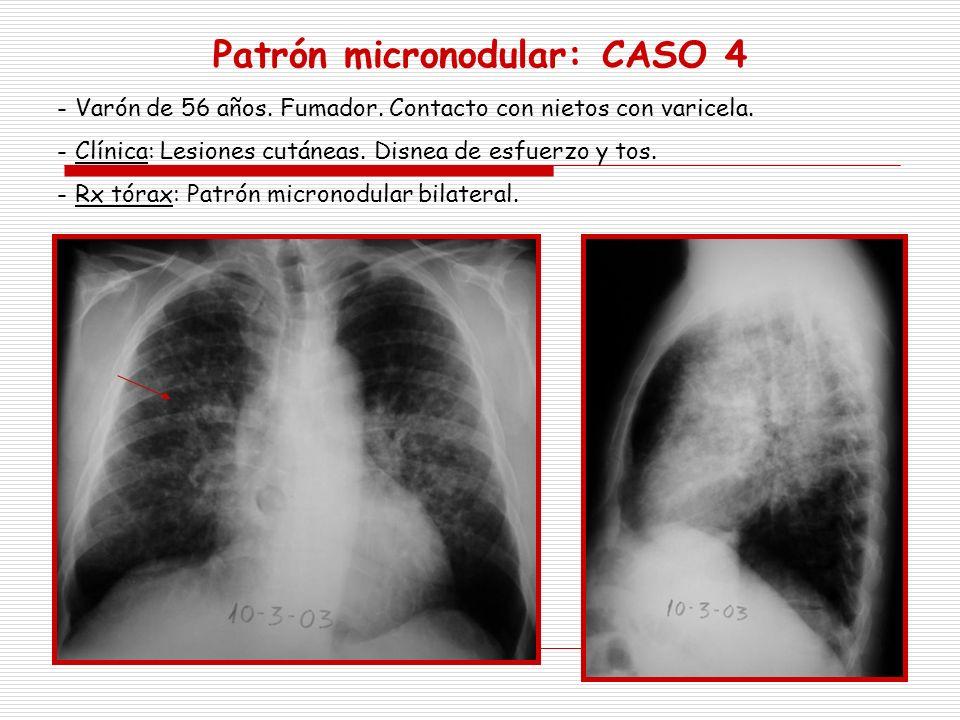Patrón micronodular: CASO 4
