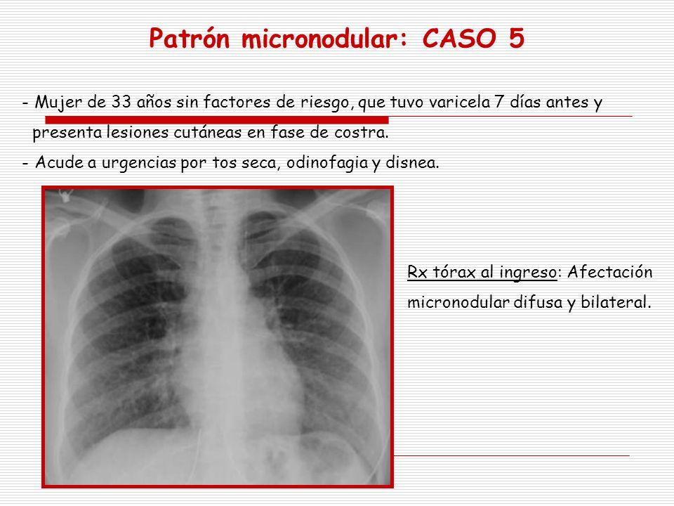Patrón micronodular: CASO 5