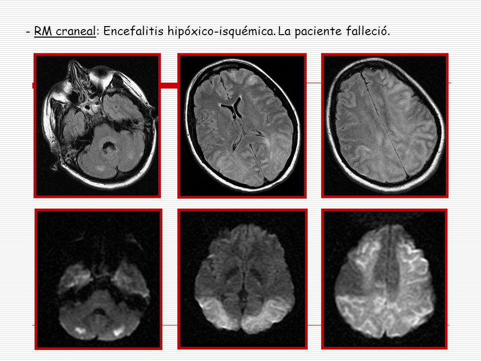 - RM craneal: Encefalitis hipóxico-isquémica. La paciente falleció.