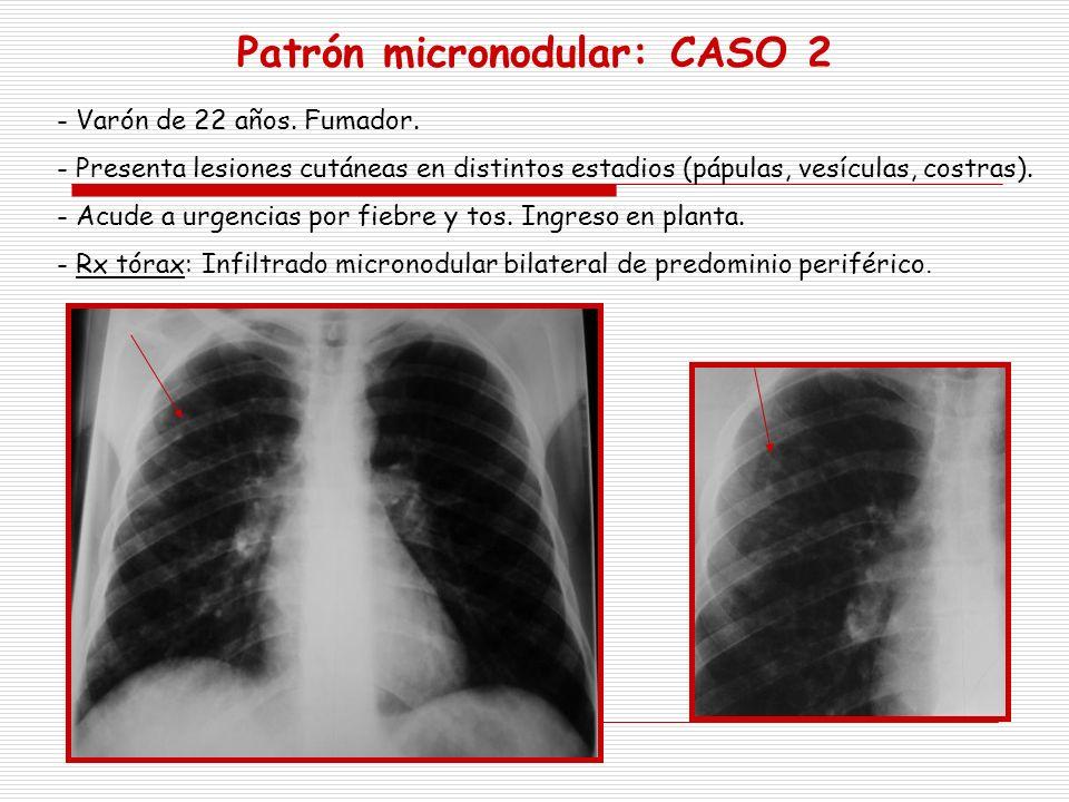 Patrón micronodular: CASO 2