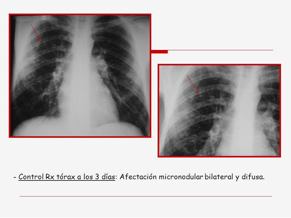 Control Rx tórax a los 3 días: Afectación micronodular bilateral y difusa.