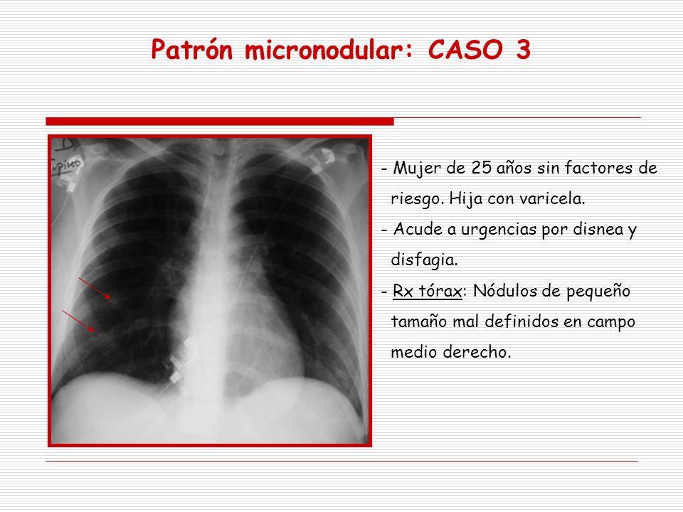 Patrón micronodular: CASO 3