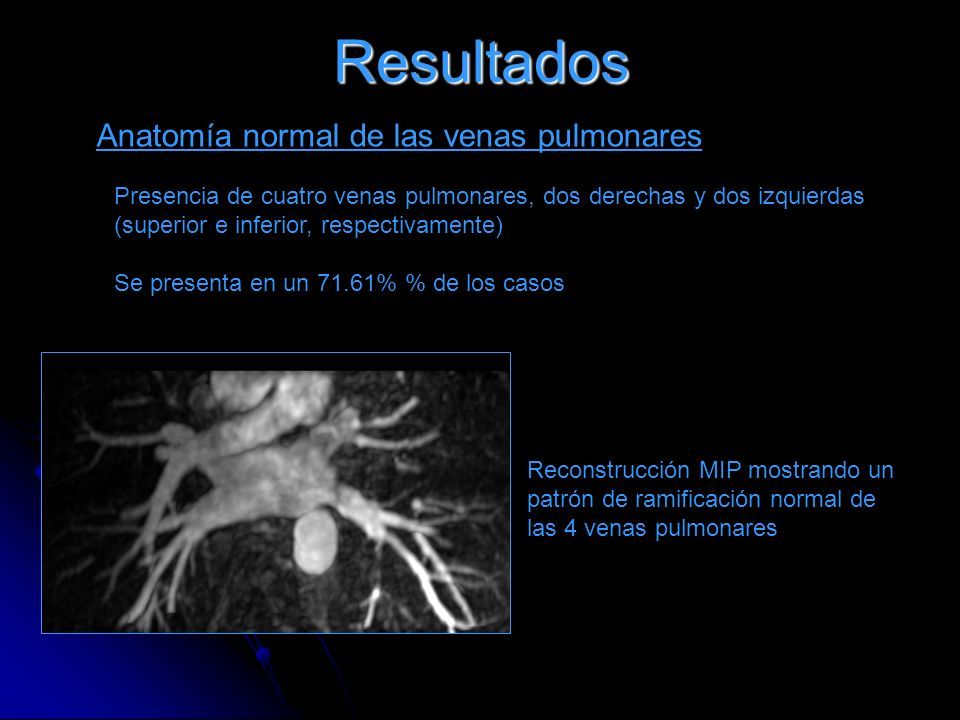 Resultados Anatomía normal de las venas pulmonares