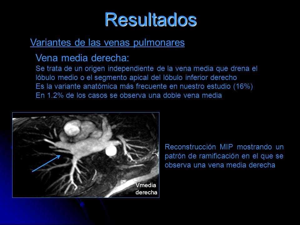 Resultados Variantes de las venas pulmonares Vena media derecha: