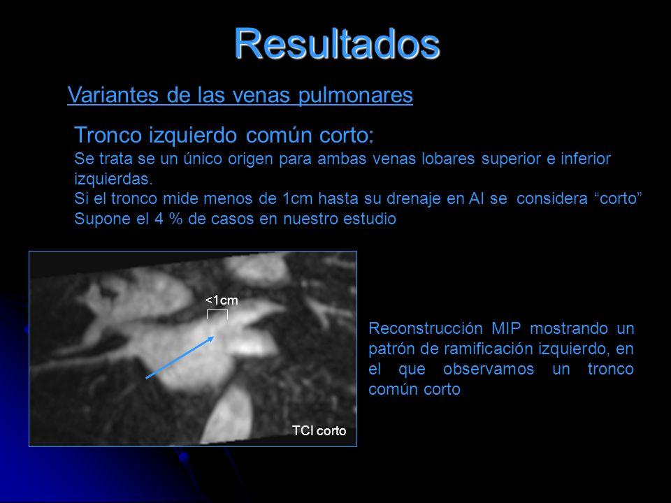 Resultados Variantes de las venas pulmonares