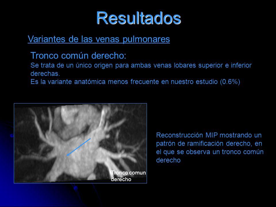 Resultados Variantes de las venas pulmonares Tronco común derecho: