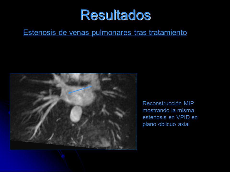 Resultados Estenosis de venas pulmonares tras tratamiento