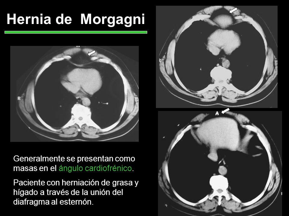 Hernia de Morgagni Generalmente se presentan como masas en el ángulo cardiofrénico.