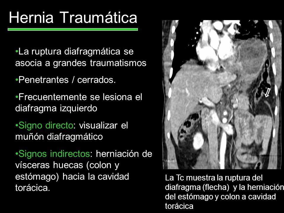 Hernia Traumática La ruptura diafragmática se asocia a grandes traumatismos. Penetrantes / cerrados.