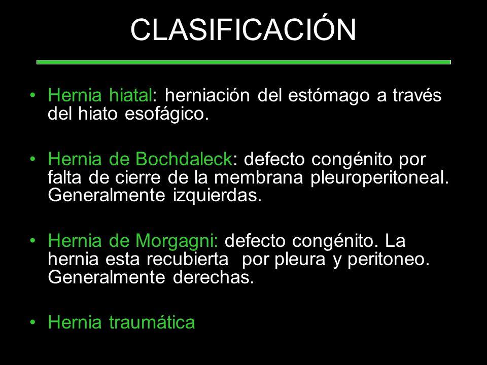 CLASIFICACIÓN Hernia hiatal: herniación del estómago a través del hiato esofágico.