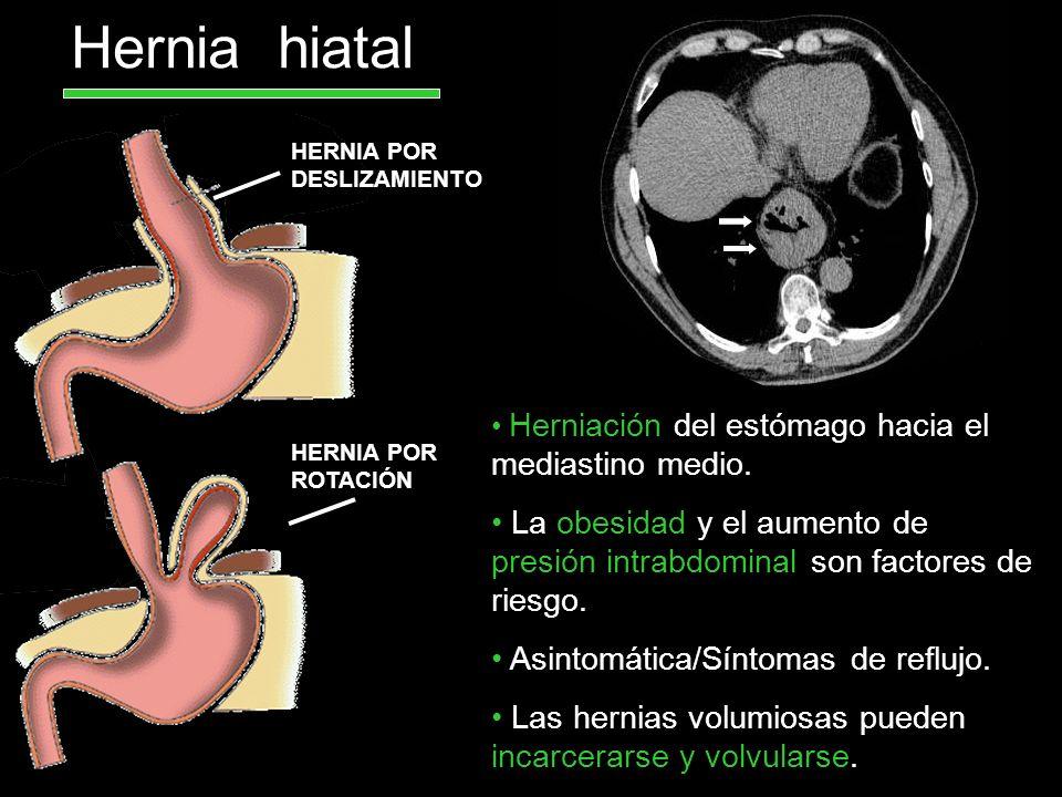 Hernia hiatal HERNIA POR DESLIZAMIENTO. Herniación del estómago hacia el mediastino medio.