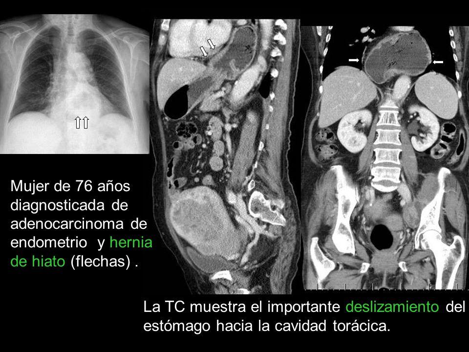 Mujer de 76 años diagnosticada de adenocarcinoma de endometrio y hernia de hiato (flechas) .