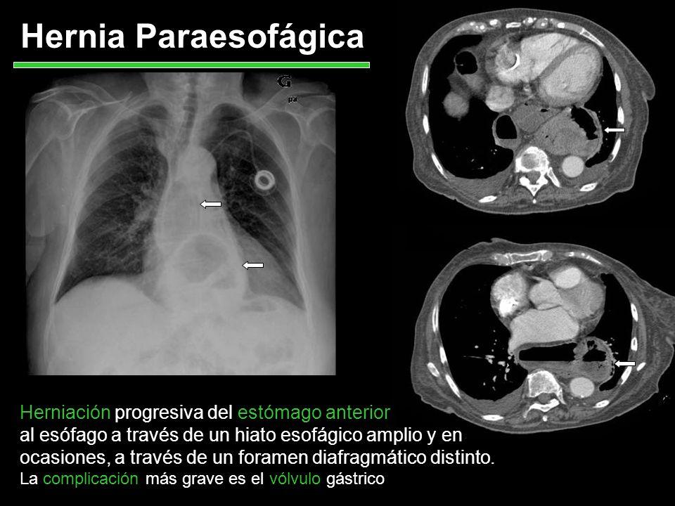 Hernia Paraesofágica Herniación progresiva del estómago anterior