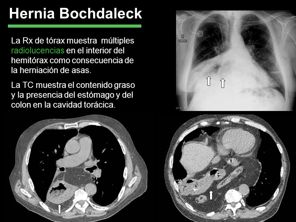 Hernia Bochdaleck La Rx de tórax muestra múltiples radiolucencias en el interior del hemitórax como consecuencia de la herniación de asas.