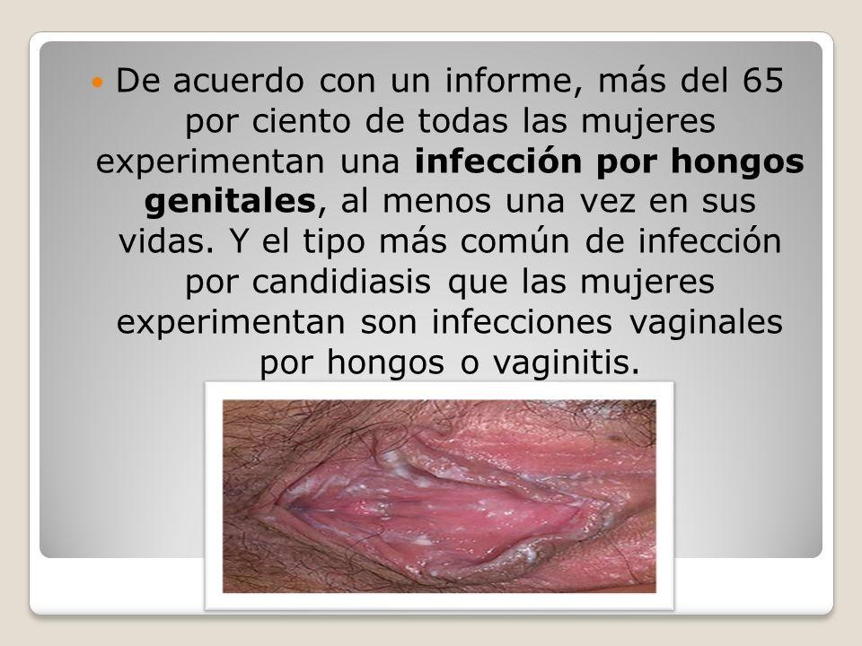 Hongos en labios genitales