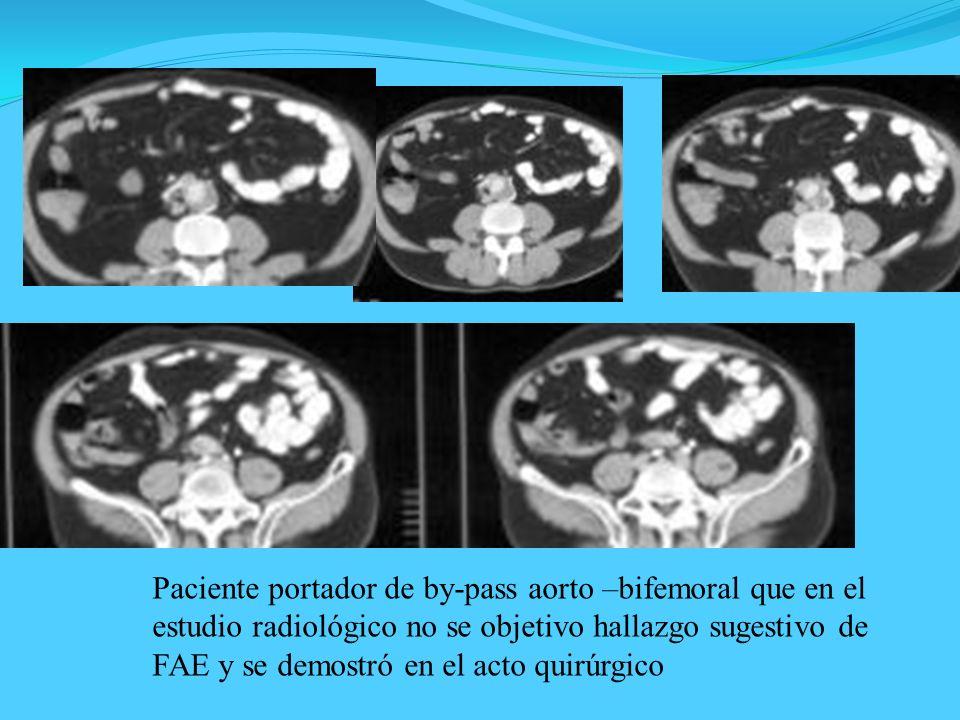 Paciente portador de by-pass aorto –bifemoral que en el estudio radiológico no se objetivo hallazgo sugestivo de FAE y se demostró en el acto quirúrgico
