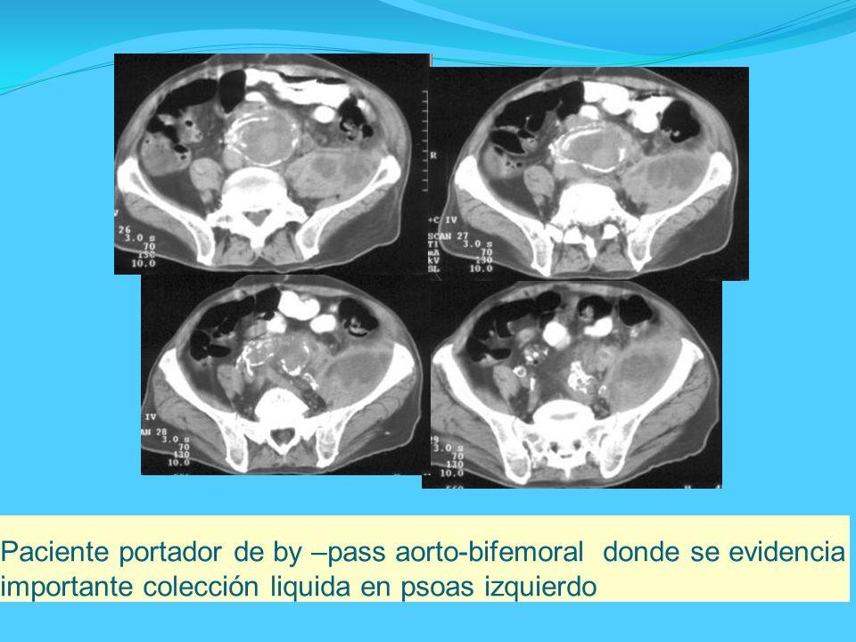 Paciente portador de by –pass aorto-bifemoral donde se evidencia importante colección liquida en psoas izquierdo