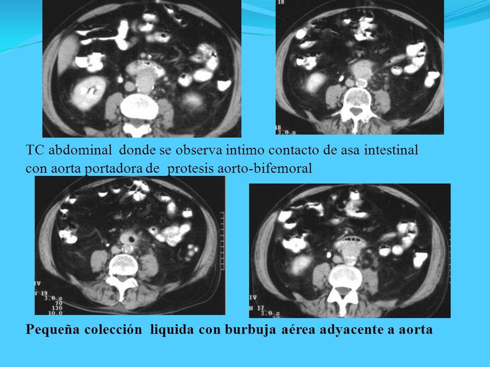 TC abdominal donde se observa intimo contacto de asa intestinal con aorta portadora de protesis aorto-bifemoral