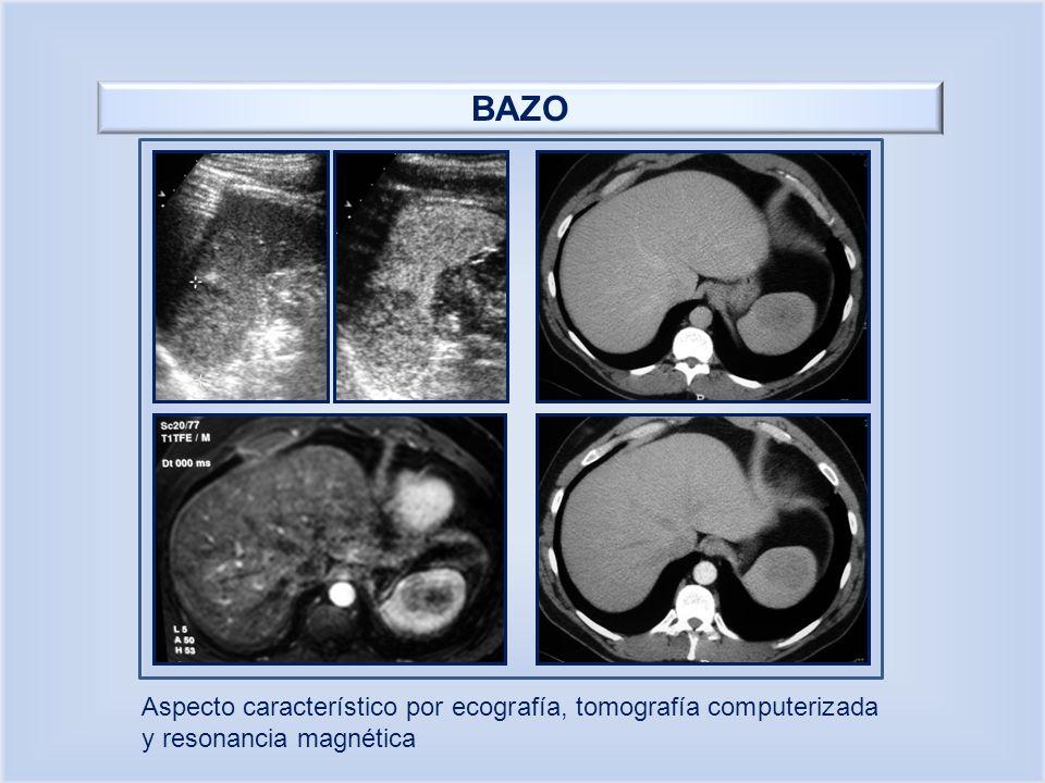 BAZO Aspecto característico por ecografía, tomografía computerizada y resonancia magnética