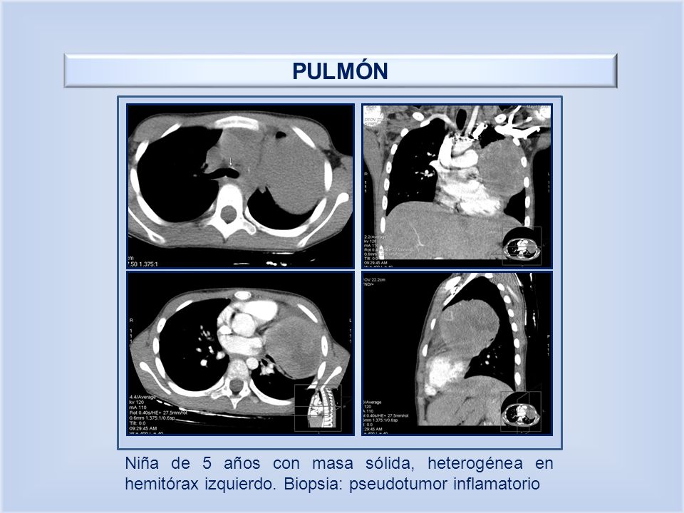PULMÓN Niña de 5 años con masa sólida, heterogénea en hemitórax izquierdo.