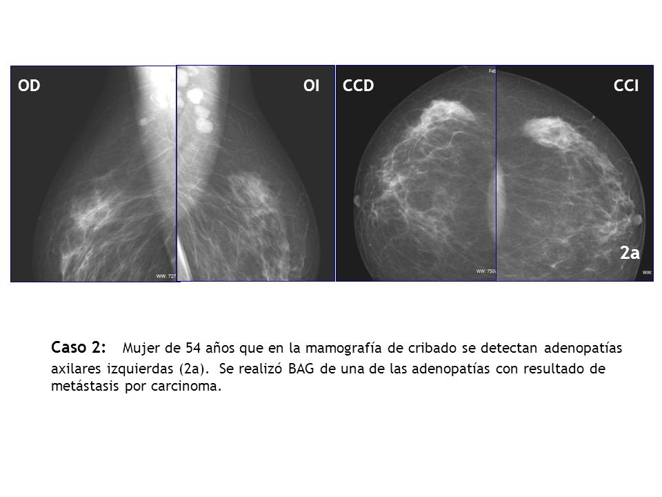 OD OI. CCD. CCI. 2a.