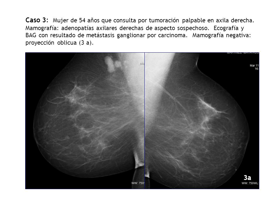 Caso 3: Mujer de 54 años que consulta por tumoración palpable en axila derecha. Mamografía: adenopatías axilares derechas de aspecto sospechoso. Ecografía y BAG con resultado de metástasis ganglionar por carcinoma. Mamografía negativa: proyección oblicua (3 a).