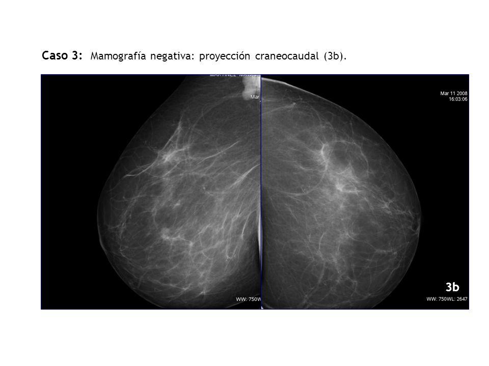 Caso 3: Mamografía negativa: proyección craneocaudal (3b).