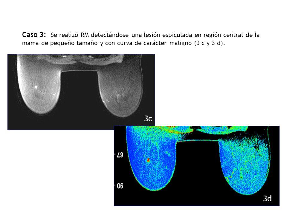 Caso 3: Se realizó RM detectándose una lesión espiculada en región central de la mama de pequeño tamaño y con curva de carácter maligno (3 c y 3 d).
