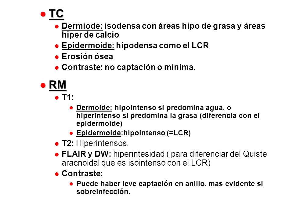 TC Dermiode: isodensa con áreas hipo de grasa y áreas hiper de calcio. Epidermoide: hipodensa como el LCR.