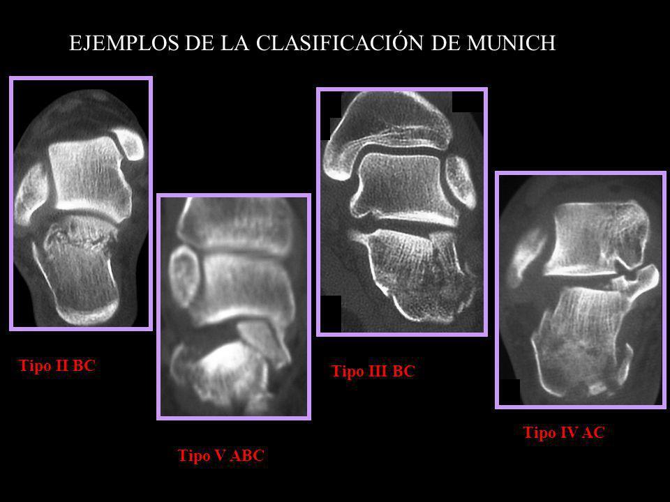 EJEMPLOS DE LA CLASIFICACIÓN DE MUNICH